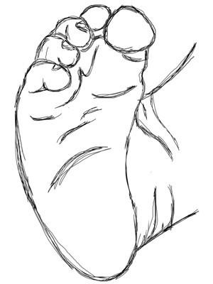 krzywa stopa, stopa konsko-szpotawa, stopa końsko-szpotawa, stopy konsko-szpotawe, stopy końsko-szpotawe, clubfoot, clubfeet, adductus, adduction, przywiedzenie