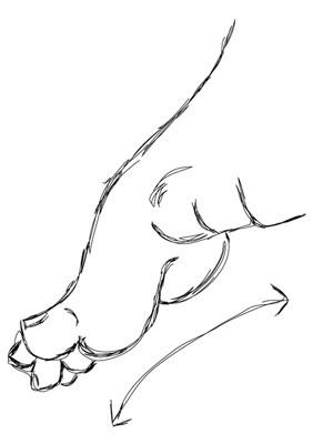 krzywa stopa, stopa konsko-szpotawa, stopa końsko-szpotawa, stopy konsko-szpotawe, stopy końsko-szpotawe, clubfoot, clubfeet, cavus, wydrążenie stopy