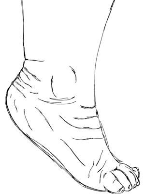 krzywa stopa, stopa konsko-szpotawa, stopa końsko-szpotawa, stopy konsko-szpotawe, stopy końsko-szpotawe, clubfoot, clubfeet, equinus, końska noga, końskie ustawienie
