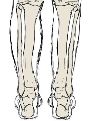 stopa konsko-szpotawa, stopa końsko-szpotawa, stopy konsko-szpotawe, stopy końsko-szpotawe, clubfoot, clubfeet, atrofia mięśniowa, łydka, szczuplejsza łydka