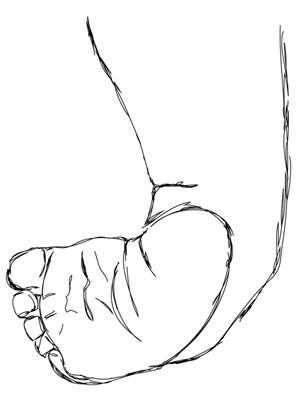 krzywa stopa, stopa konsko-szpotawa, stopa końsko-szpotawa, stopy konsko-szpotawe, stopy końsko-szpotawe, clubfoot, clubfeet, varus, szpotawość, szpotawa pięta