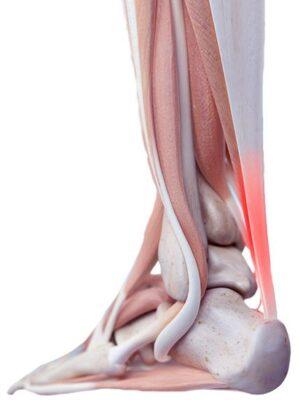 ścięgno Achillesa, Achilles tendon, budowa stopy, anatomia stopy, ścięgna, mięśnie, więzadła, tkanki miękkie, sctructure of foot, skeleton of foot, tendons, ligaments, soft tissues, elastic, elastyczne