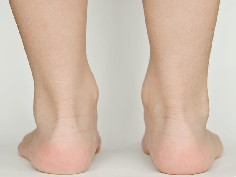 stopy dziecka, tył, ścięgno Achillesa, łydka, pięty