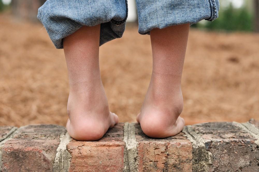 krzywa stopa, stopa końsko-szpotawa, stopy końsko-szpotawe, clubfoot, clubfeet, nawrót, relapse, reccurence, nawrót wady