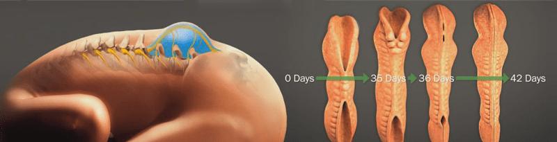 kręgosłup, cewa nerwowa, formowanie cewy nerwowej, rozszczep kręgosłupa, kręgi, domknięty krąg, niekompletnie domknięty krąg, spina bifida, meningocele, myelomeningocele, przepuklina oponowo-rdzeniowa