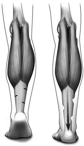 tenotomia, tenotomia Hoke, Hoke tenotomia, potrójna tenotomia, Hoke tenotmy, triple hemisection, ścięgno Achillesa, przezskórna, stopa końsko-szpotawa, stopy końsko-szpotawe, clubfoot, clubfeet, tenotomy, Achilles tendon tenotomy, metoda Ponsetiego, Ponseti method