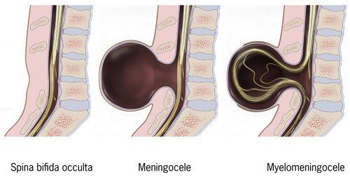 kręgosłup, rozszczep kręgosłupa, kręgi, domknięty krąg, niekompletnie domknięty krąg, spina bifida, meningocele, myelomeningocele, przepuklina oponowo-rdzeniowa