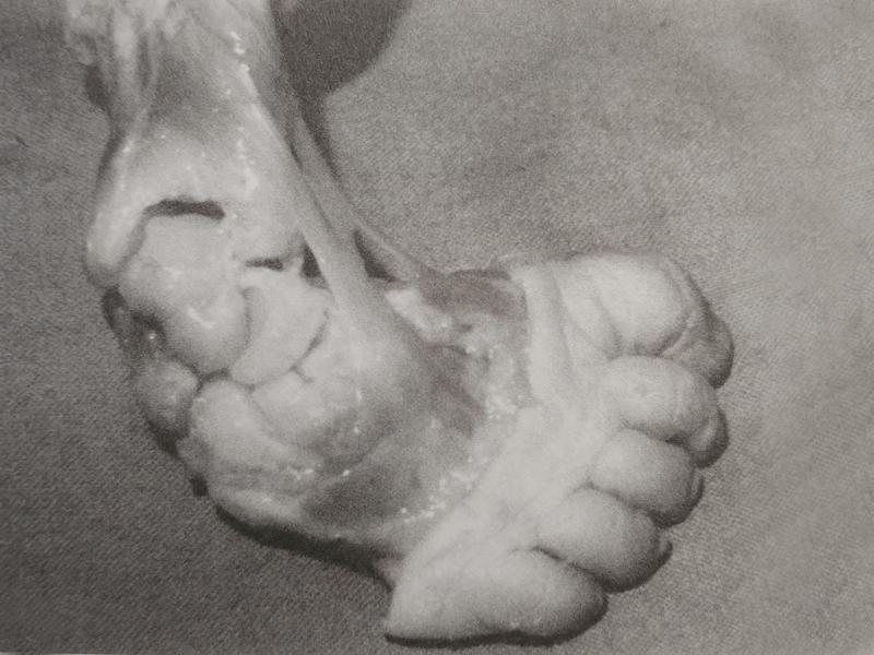 krzywa stopa, stopa konsko-szpotawa, stopa końsko-szpotawa, stopy konsko-szpotawe, stopy końsko-szpotawe, clubfoot, clubfeet, ligaments, ścięgna, więzadła, patologia stopy końsko-szpotawej, zmiany w stopie