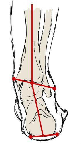 stopa, kość piętowa, ustawienie, ustawienie koślawe, heel position, valgus position, valgus heel
