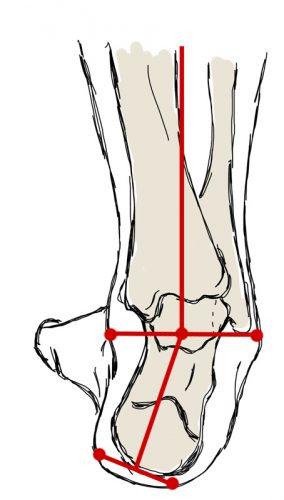 stopa, kość piętowa, ustawienie, ustawienie szpotawe, heel position, varus position, varus heel