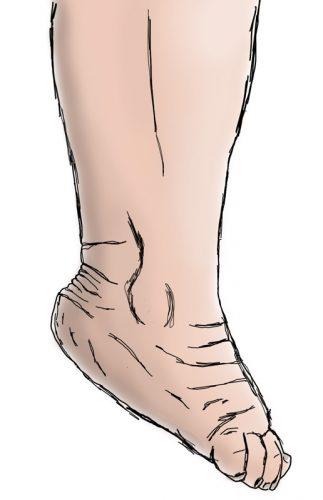 stopa, ruchy stopy, zgięcie podeszwowe, górny staw skokowy, ankle joint, plantarflexion movement in ankle joint,
