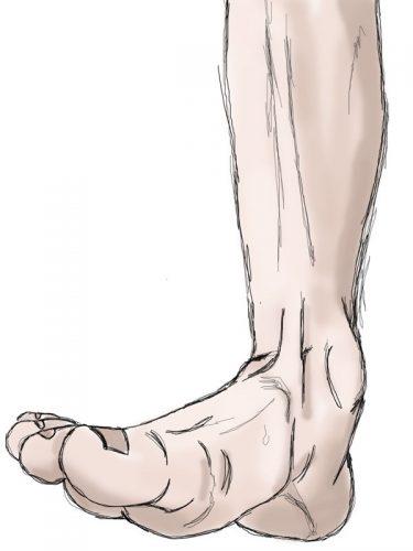 stopa, ruchy stopy, pronacja, ruch trójpłaszczyznowy, pronation