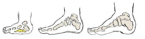 rozwój stopy, stopy dziecka, tkanka tłuszczowa, development of child foot, fat pad in foot