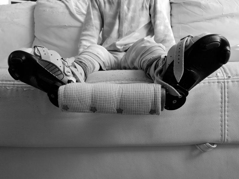 szyna derotacyjna, szyna Mitchella, szyna Ponseti, stopa końsko-szpotawa, stopy końsko-szpotawe, leczenie, metoda Ponsetiego, Mitchell brace, Ponseti brace, clubfoot, clubfeet, Ponseti method