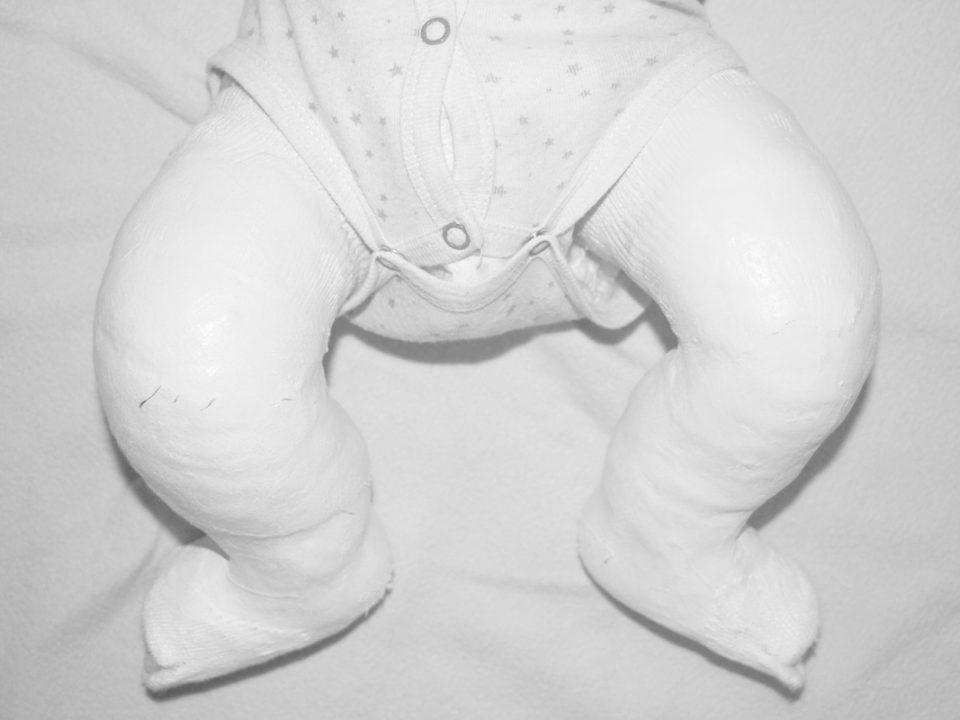 gipsownie, zagipsowana stopa, zagipsowana noga, owata, gips, Soft Cast, Scotch Cast, metoda Ponsetiego, Ponseti method, stopa końsko-szpotawa, stopy końsko-szpotawe, clubfoot, clubfeet, plaster-casts, casting, modeling of cast