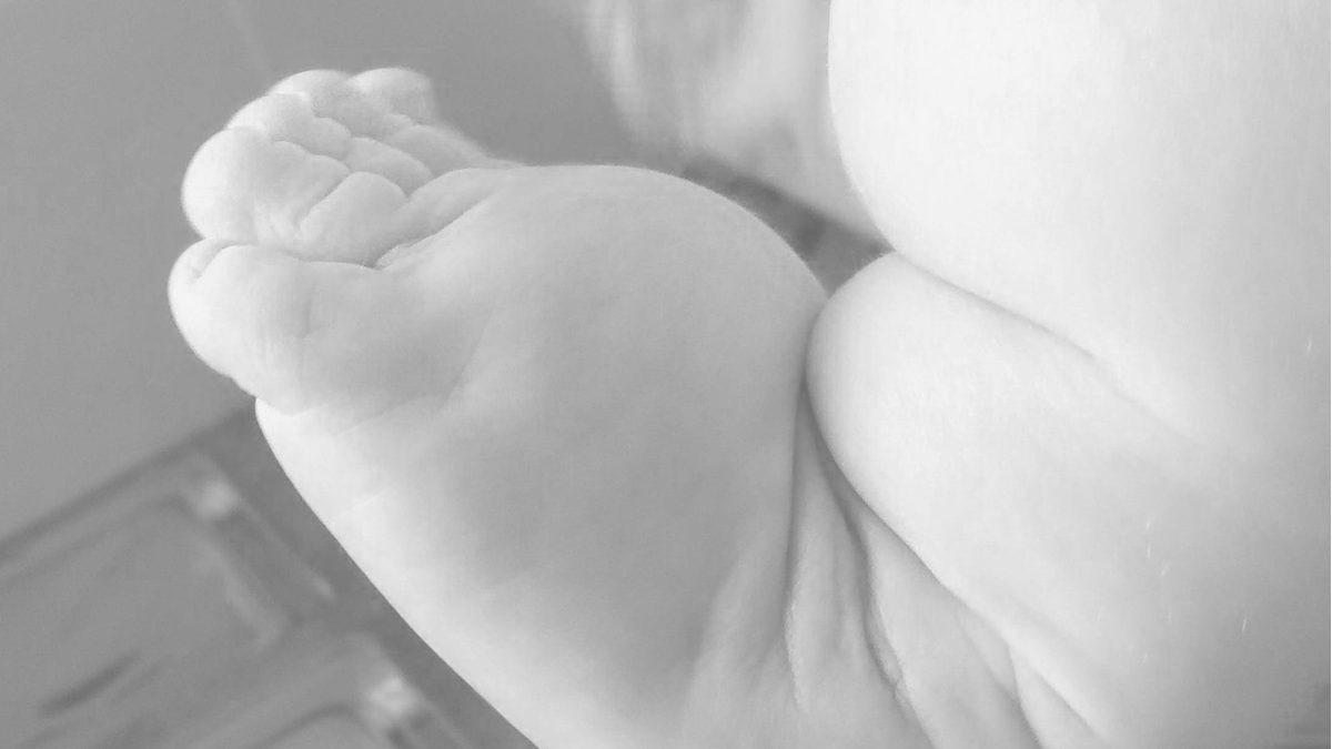 stopa końsko-szpotawa, stopy końsko-szpotawe, metoda Ponsetiego, leczenie, poduszka tłuszczowa, grzbiet stopy, opuchlizna