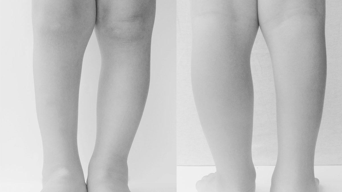 łydka, mięśnie łydki, różnice, zdrowa noga, noga z wadą, calf, calf muscles in clubfoot, calf muscles in normal foot, comparison, porównanie, stopa konsko-szpotawa, stopa końsko-szpotawa, stopy konsko-szpotawe, stopy końsko-szpotawe, clubfoot, clubfeet